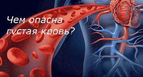 Чем опасна густая кровь?