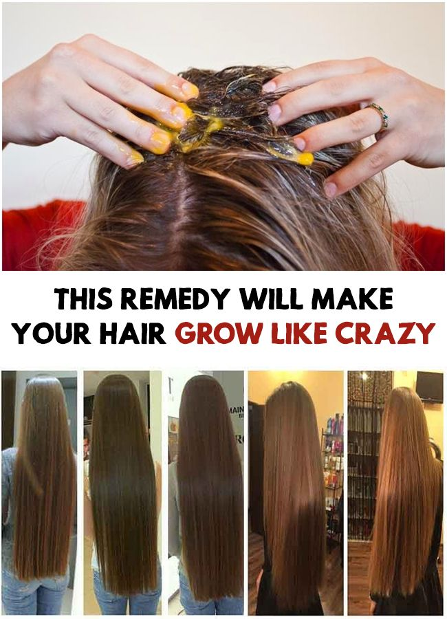 This Remedy Will Make Your Hair Grow Like Crazy  Make -4111