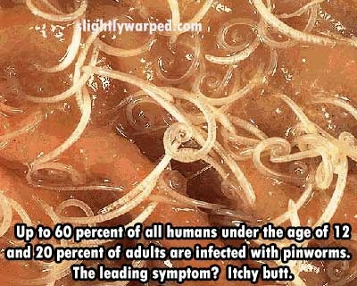 How To Treat Pinworms In Humans Naturally