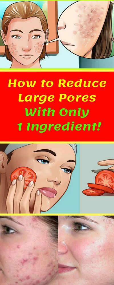 How to Reduce Large Pores With Only 1 Ingredient! …