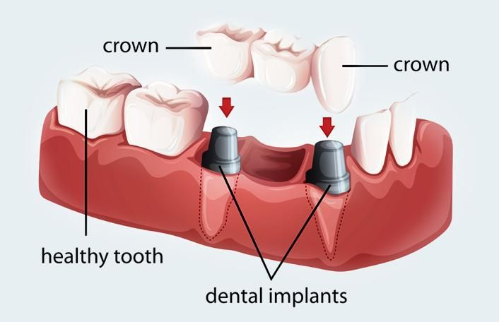 Dental crowns and bridges are the most usual dental restoration work in dentistry. The dental crowns permanently restore and provide support for the damaged tooth. Dental Care Olathe is the best dental clinic in Kansas that provides dental crowns and bridges treatment at the affordable prices.