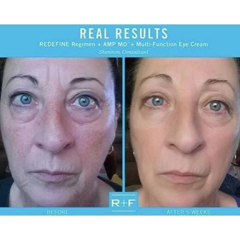rodan and fields redefine before and after pics - redefine.howtonow.org