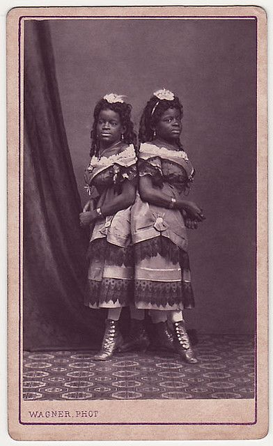 Millie and Christine McCoy (1851-1912) were conjoined twins born into slavery.  They and their mother were sold to a showman, Joseph Smith.  Smith and his wife educated the girls; they eventually could speak five languages, dance, play music, and sing.  They were known as 'The Two Headed Nightingale'.  In the 1880s they retired and purchased a small farm.  Millie died of tuberculosis at age 61, with Christine following hours later.  They remain one of the oldest-lived set of conjoined twins.Conjoined Twins, Joseph Smith, Circa 1880, Vintage Black People, Twin Born, Plays Music, Black History, Millie'S Christine Mccoy, Mccoy 1851 1912