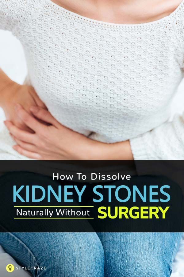 How To Dissolve Kidney Stones Naturally Without Surgery