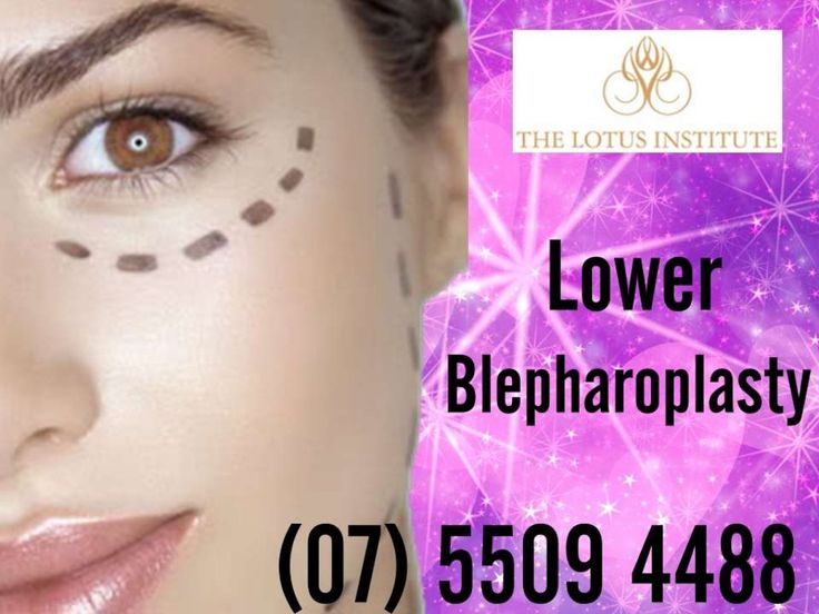 Lower Blepharoplasty (Eyelid Surgery) Gold Coast - Southport Clinic by TheLotusInstitute via slideshare