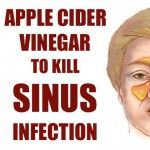 Sinusitis is an inflammation of the sinuses. Clear sinuses are filled with air, but blockages enable the germs to grow there, and you end up dealing with a nasty infection. Some of the most common symptoms of sinusitis include fever, facial pain, headache...