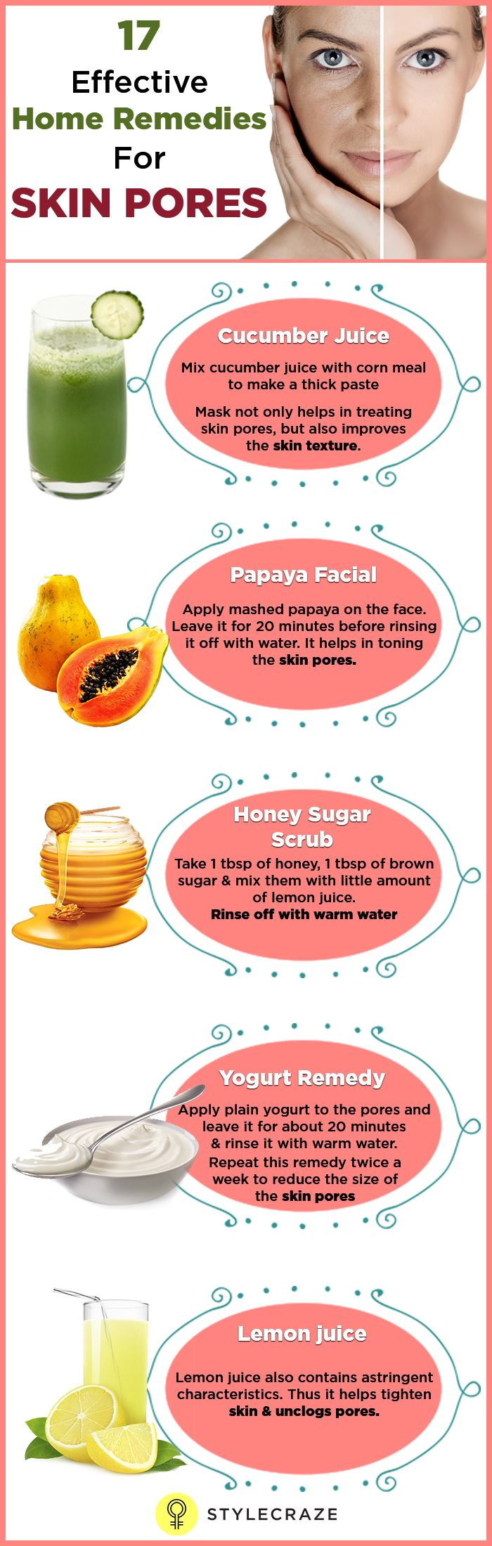 17 Natural home remedies to help cure skin pores.