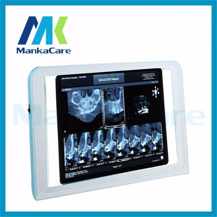 (129.50$)  Watch here - http://aitqb.worlditems.win/all/product.php?id=32421210921 - Manka Care-best Medical LED x-ray film viewer,medical x ray film view box,medical negatoscope and x ray film illuminator