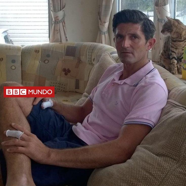 """""""Casi pierdo los dedos de la mano por culpa de un dron"""" - BBC Mundo - BBC Mundo"""