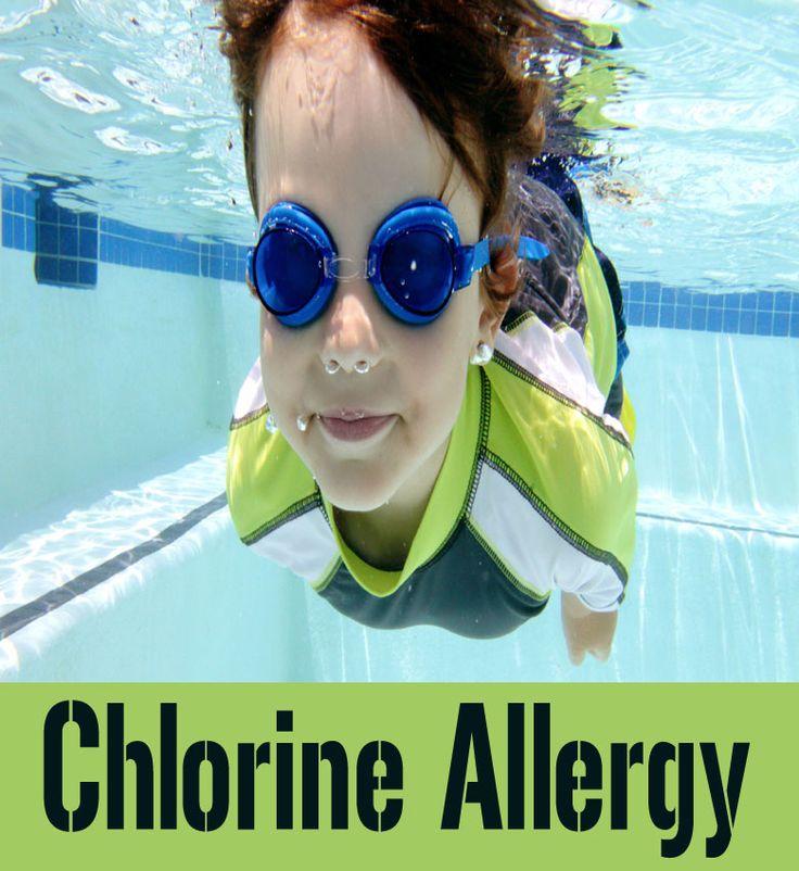 Chlorine Allergy