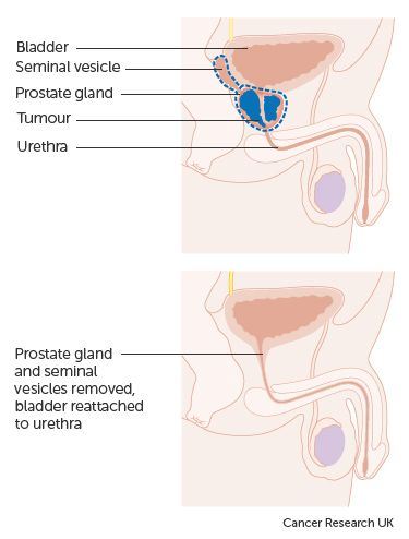 Diagram showing before and after a radical prostatectomy