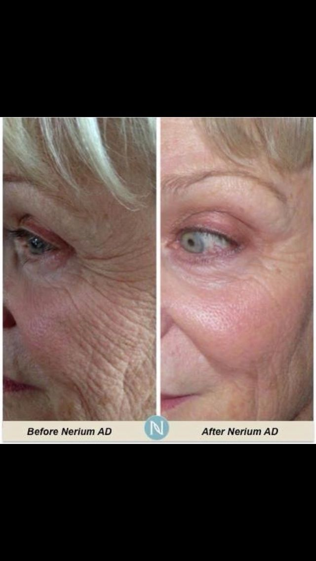 Nerium Before and After. Nerium AD dramatically reduces the appearance of fine lines and wrinkles, discoloration, uneven skin texture, enlarged pores and aging or loose skin, without the use of harmful ingredients. You can feel confident that what you're using is good for you and good for your skin!