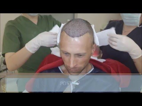 Hair Loss Treatment for Men / Male Pattern Baldness Treatment - FUE Hair Transplant Result -  How To Stop Hair Loss And Regrow It The Natural Way! CLICK HERE! #hair #hairloss #hairlosswomen #hairtreatment Hair Loss Treatment for Men/Male Pattern Baldness Treatment – Health Travel International Our patient Karl's impressive FUE hair transplant result showing his growth from... - #HairLoss