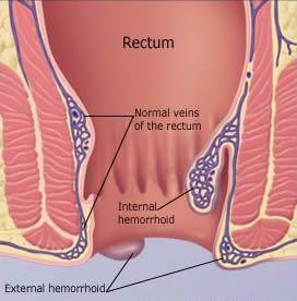 Something is. Sharp burst of pain around the anus area consider