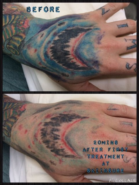 Experience the best tattoo removal method with the experts of Skiin Sure Tattoo Removal. They are very popular in Sydney.