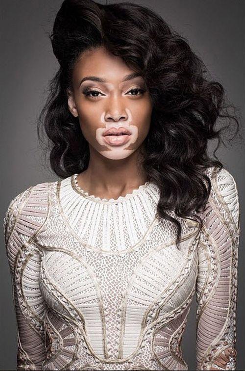 Chantelle Brown-Young.  Americas Next Top Model who has vitiligo. Truly an inspiration