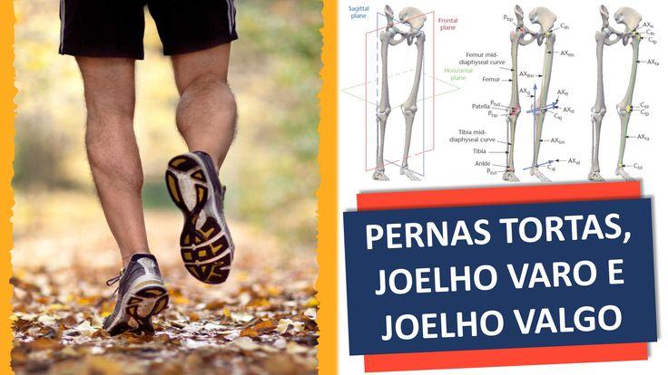 www.cirurgiadejoelho.med.br / O DR. ADRIANO KARPSTEIN, médico ortopedista especialista em Cirurgia de Joelho e Medicina Esportiva, explica sobre PERNAS TORTAS, JOELHO VARO E JOELHO VALGO. / #joelho #cirurgiadejoelho