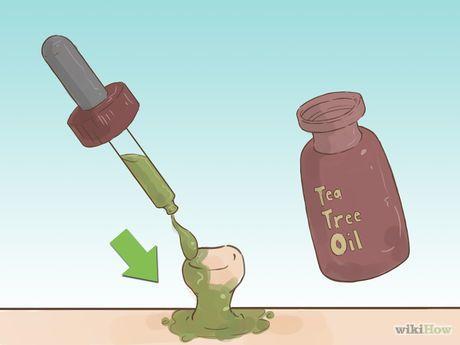 Immagine titolata Get Rid of Skin Tags Step 8