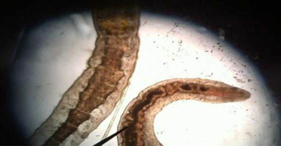 How To Kill Skin Parasites Naturally