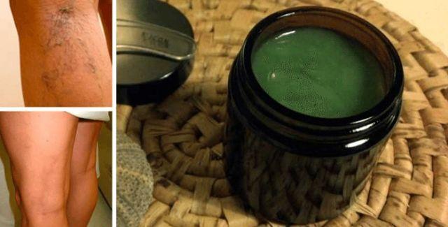 Mujer curó sus várices con esta antigua receta de la abuelita. Resultados casi inmediatos!   Salud con Remedios