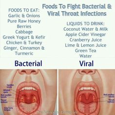 Differences between Bacterial vs Viral sore throat (infection) symptoms and foods that could help cure.  G;)