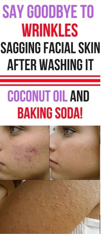 how to use coconut oil and baking soda, cleansing your skin deeply – Page 5 – WellNess