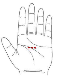 Manopuntura Ulcera gástrica, gastritis, desórdenes estomacales Estimule las zonas marcadas en rojo con un objeto puntiagudo(de punta redondeada para no hacerse daño). Tres veces por día como mínimo (tres minutos cada sesión)