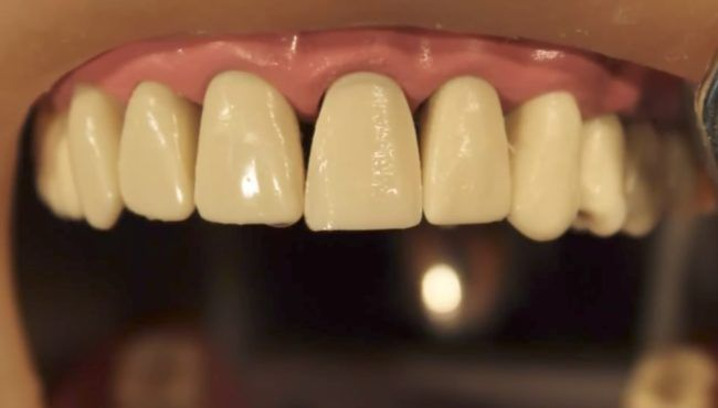 Dental Veneers Are So Common But The Prep Work For Them Will Make You Cringe