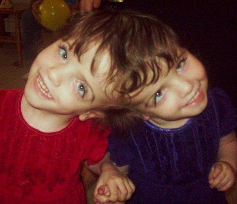 The 7-Year-Old Conjoined Twins Who Can See Through Each Other's EYES