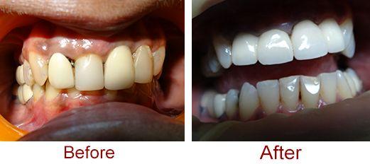 Dental Crown Procedure India | Tooth Bridge Hyderabad | Dental ...