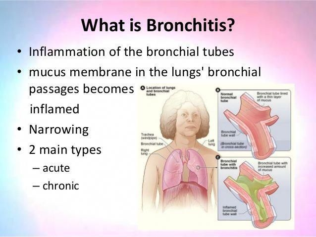 All-Natural Bronchitis Antidote Treatment Check this post about what is Bronchitis, How it happens, Symptoms & Treatment. How Salt Therapy is the proven formula for relief. #asthmasymptomssmoothiesrecossshealthy