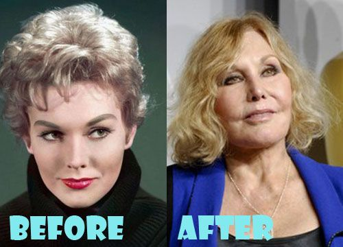 Kim Novak Plastic Surgery Before and After Pictures