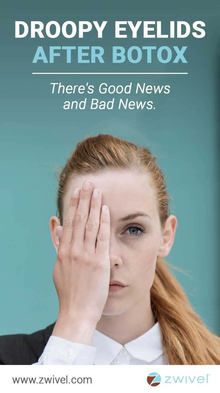 Droopy Eyelids After Botox There S Good News And Bad News
