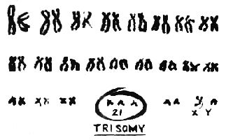 Ryan's karotype!  Cool idea for a tattoo!!!!  trisomy 21 karyotype - Google Search
