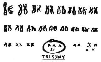 Ryan's karotype!  Cool idea for a tattoo!!!!  trisomy 21 karyotype - Google Search