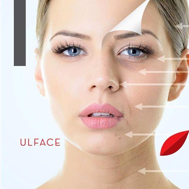 Η επανάσταση στην αισθητική! Μία μόνο θεραπεία Ulface treatment είναι αρκετή για να μας δώσει το επιθυμητό αποτέλεσμα σύσφιξης που μας προσφέρει ένα lifting. Eφαρμόζεται σε οποιοδήποτε σημείο του προσώπου υπάρχουν ρυτίδες, λεπτές γραμμές και χαλάρωση.  #vivify #thebeautylab #vivifyyourself #beautyscience #deepsee #ulface