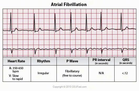 ECG Interpretation Course - Every rhythm