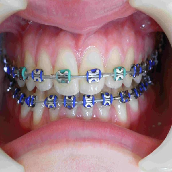 20 best Braces Colors images on Pinterest | Braces colors ...
