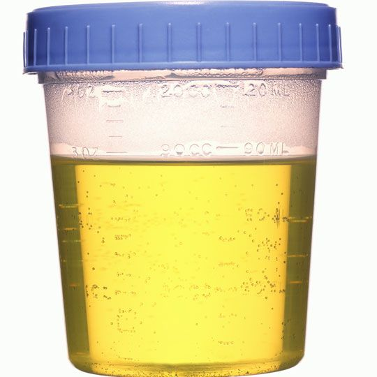 Note that synthetic urine refers to an artificial substance