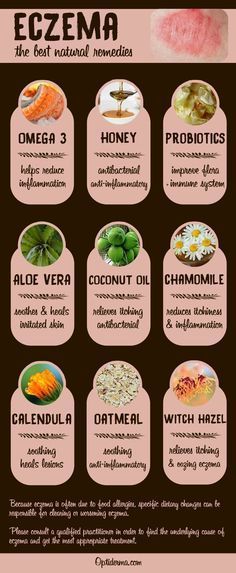 Eczema Heres a list of the best natural remedies for eczema: omega 3, honey, probiotic...