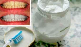 Dile adios al mal aliento, el sarro y la placa con esta crema dental casera blanqueadora de dientes