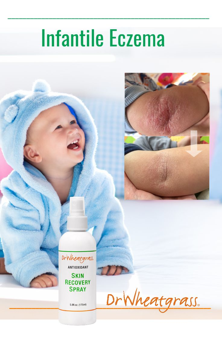 Infantile #eczema? See how #Wheatgrass helped baby's skin.