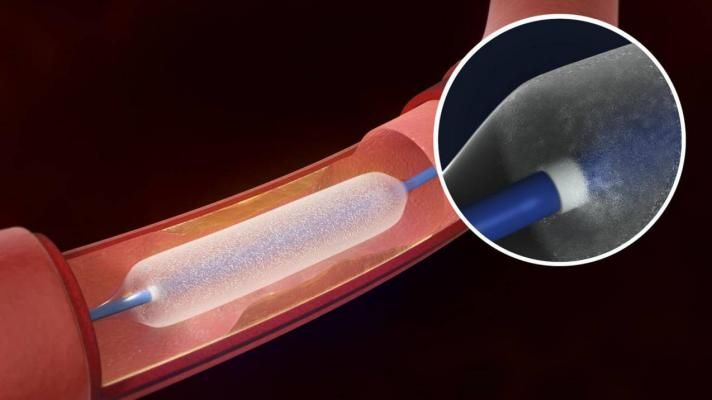 Drug Eluting Stents - Rise in Prevalence of cardiovascular diseases is anticipated to Fuel the Demand of Drug Eluting Stents Market