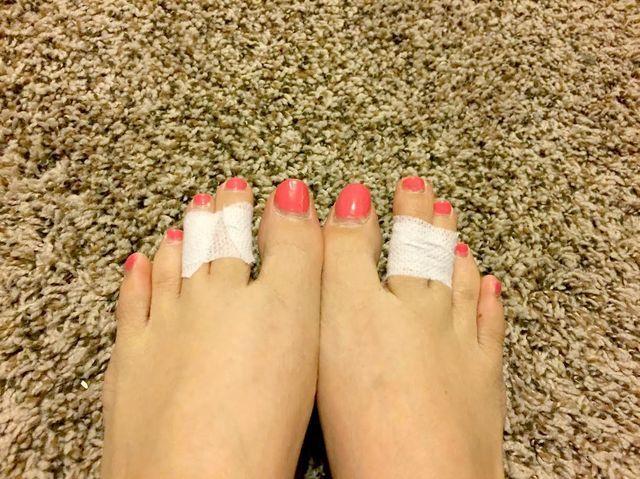 Ze gebruikt tape om haar middelste 2 tenen bij elkaar te binden. De reden is…