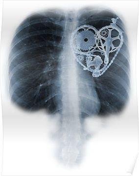 Recently had a chest x-ray and started to realize I might be over doing the biking thing.   I love it!