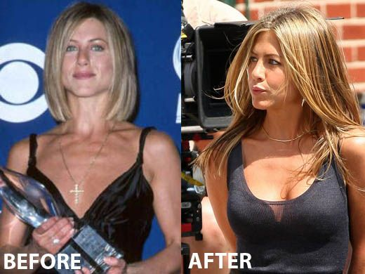 Jennifer Aniston breast Implants surgery before and after pictures....