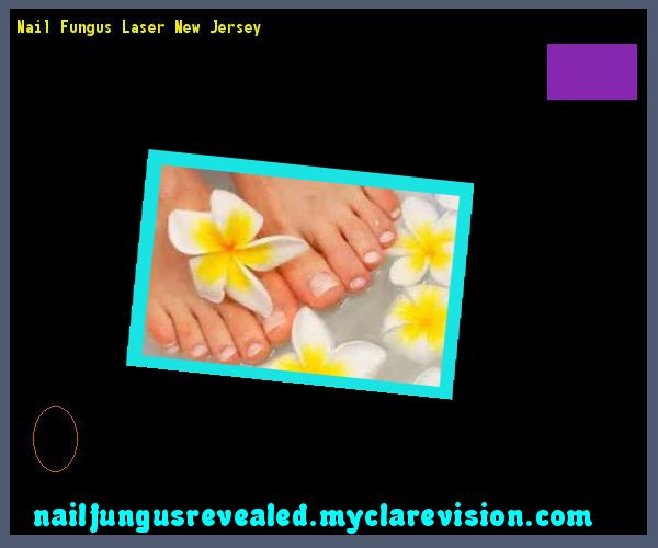 Nail fungus laser new jersey - Nail Fungus Remedy. You have nothing to lose! Visit Site Now