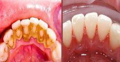 Con este genial truco podrás eliminar el sarro de tus dientes de forma rápida y sencilla - Entérate de algo