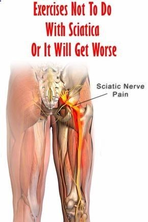 Exercise To Reduce Sciatic Pain