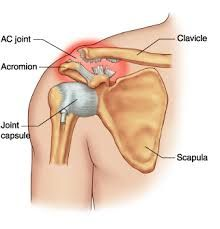 An AC Joint Dislocation occurs when no part of the clavicle remains touching the acromion bone that it normally sets into.
